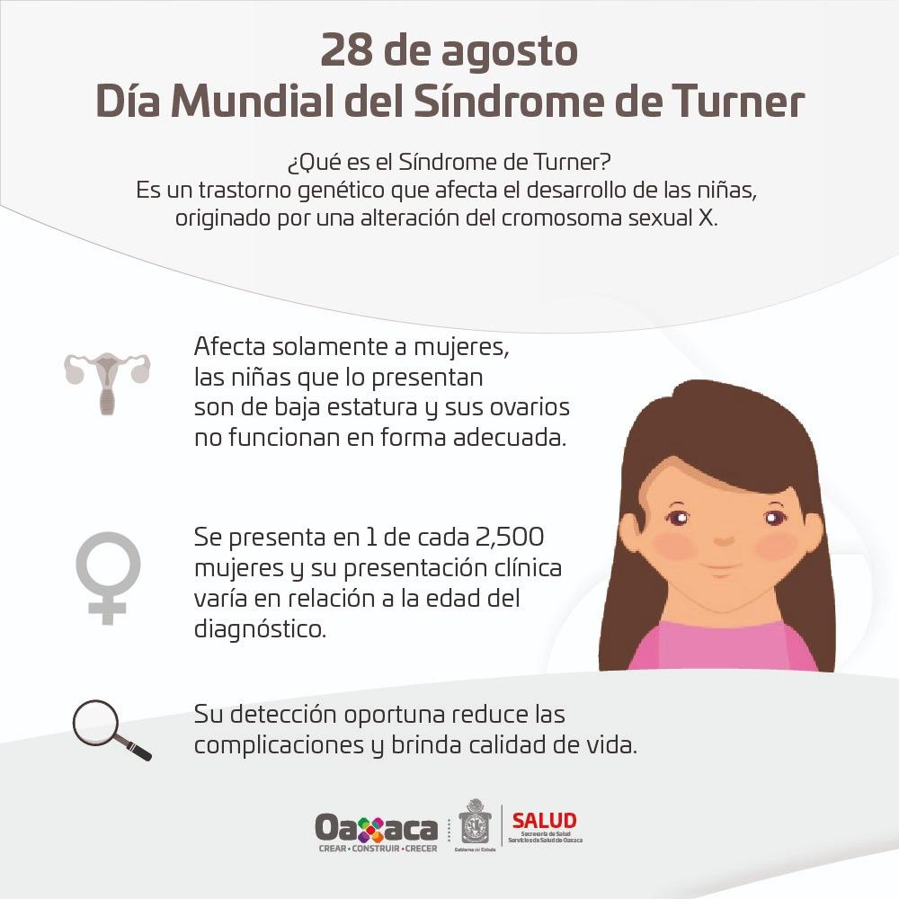 Síndrome de Turner